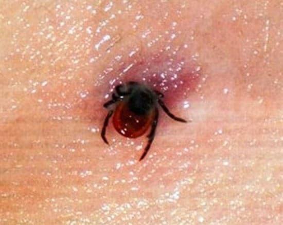 Симптомы и последствия, вызванные укусом клеща